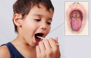 Что такое дифтерит? Симптомы и лечение