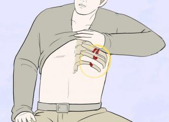 Посттравматическая пневмония: особенности диагностики и лечения