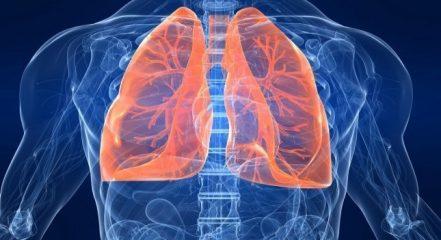 Пневмония при бронхиальной астме