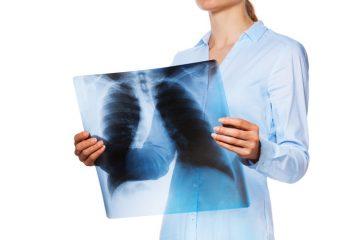 Осложнения туберкулеза легких