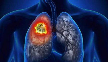 Заразен ли очаговый туберкулез легких? Ответы на вопросы и тактика лечения