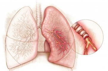 Симптомы и эффективное лечение бронхиальной астмы у взрослых