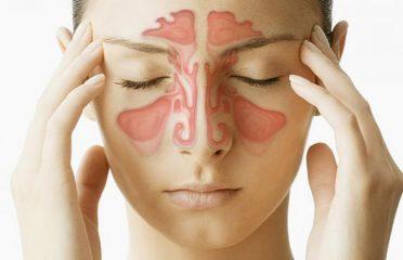 Что такое синусит? Симптомы и лечение распространенного заболевания
