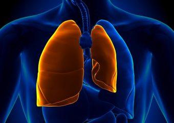 Что такое пневмоторакс? А также основные причины, симптомы и первая помощь