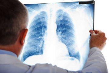 Виды пневмонии и их лечение: очаговая, инфильтративная, крупозная и сливная