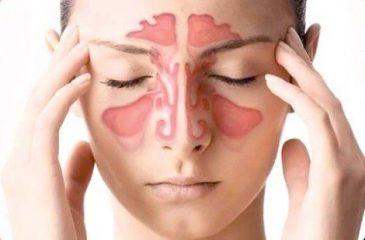 Почему воспаляются пазухи носа? Симптомы и лечение различных видов синусита