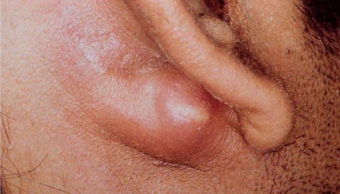 Мастоидит: симптомы, лечение и прогноз, клиническая характеристика