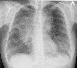 Что делать, если обнаружили пятно на легком на рентгене? Диагностические правила и закономерности