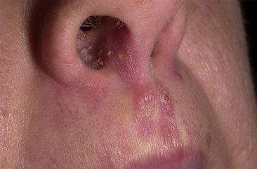 Симптомы и лечение грибка в носу: полезные советы профессионалов