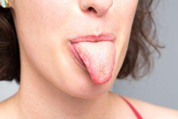 Почему при простуде желтый язык и когда стоит обратиться к врачу?