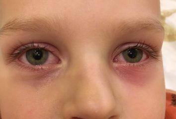 Почему слезятся и чешутся глаза? Причины и лечение воспалительного процесса