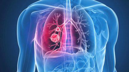 Симптомы, диагностика и лечение рака легких и бронхов