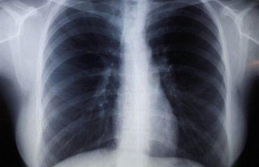 В чем отличие между флюорографией и рентгеном легких? Показания и отличия исследований