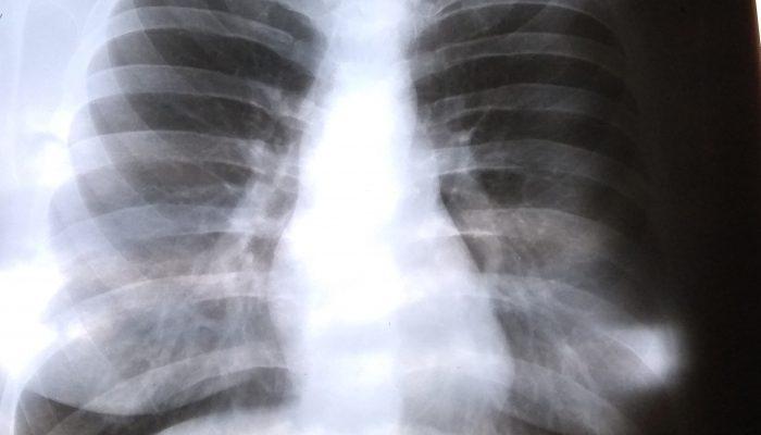 Флюорография и рентгенография разница