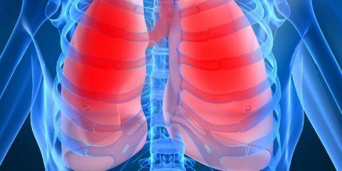 Почему в легких скапливается жидкость? Причины и лечение отека легких и плеврита