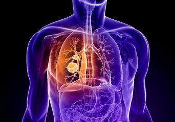 Что такое саркома легких: симптомы, лечение и прогноз выживаемости