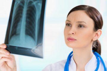 Что такое правосторонняя и левосторонняя пневмония? Причины, классификация и лечение болезни