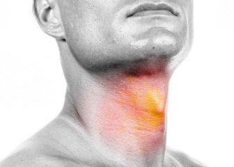 Аллергический фарингит: причины, симптомы и методы лечения