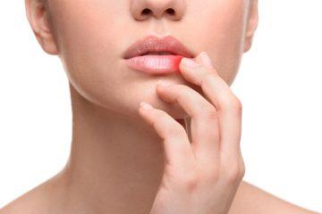 Почему появилась простуда на губе? Эффективные методы лечения в домашних условиях