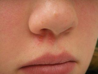 Симптомы и лечение герпеса в носу местными средствами и таблетками
