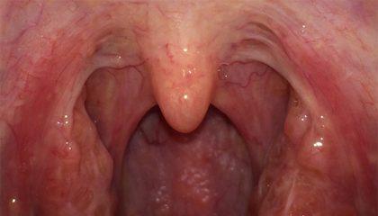 В чем разница между миндалинами, гландами и аденоидами? Когда нужна операция?