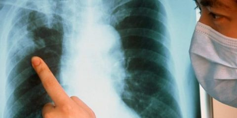 Что такое открытая и закрытая формы туберкулеза? Все отличия этих вариантов болезни